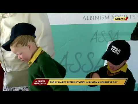 Minister Nathi Mthethwa commemorates International Albinism Day