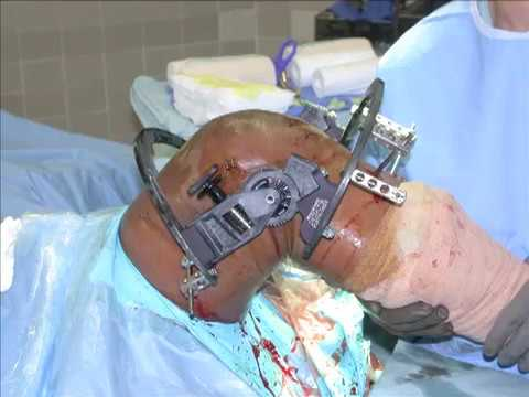Placement of a Compass Knee Hinge: Surgical Technique