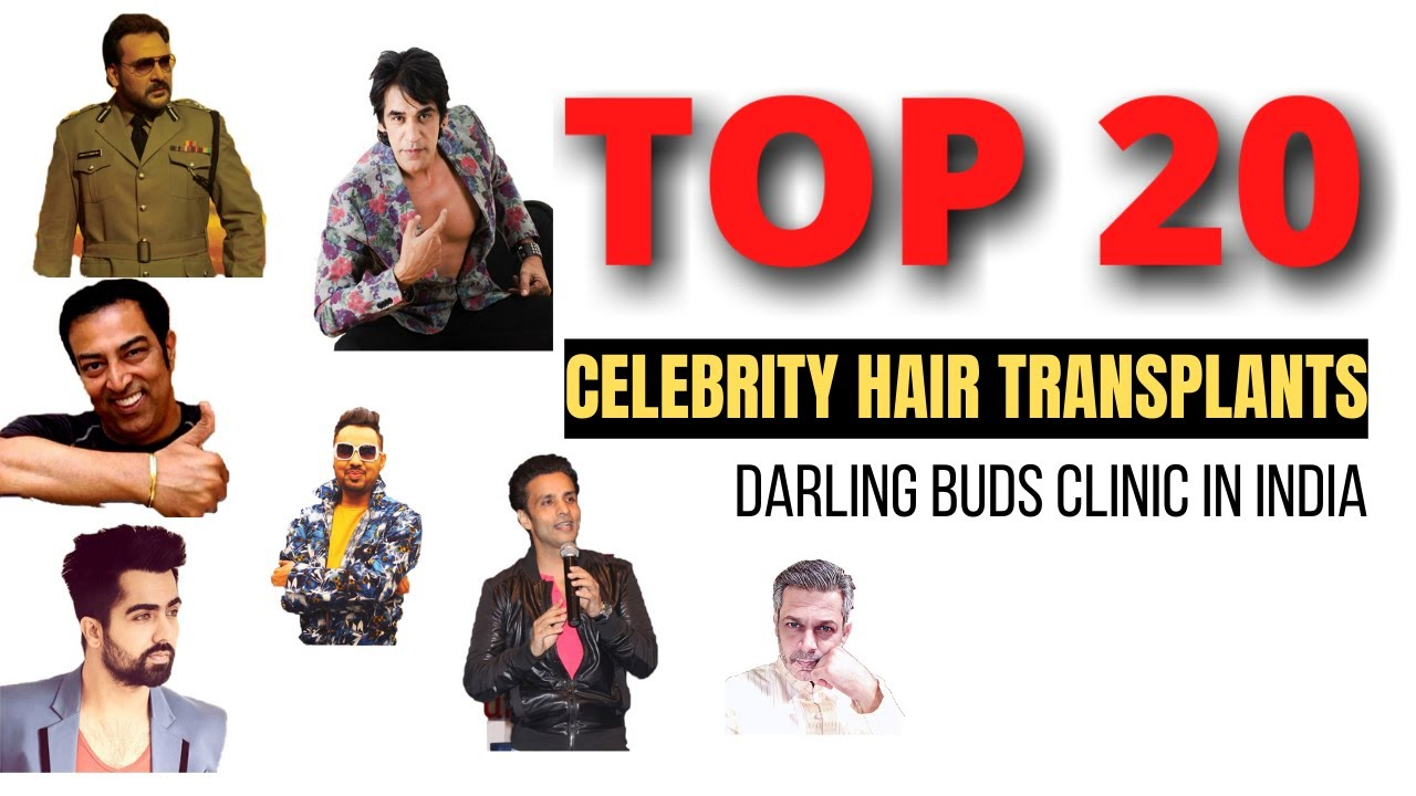 Top celebrities hair transplant in India at Darling Buds Clinic India