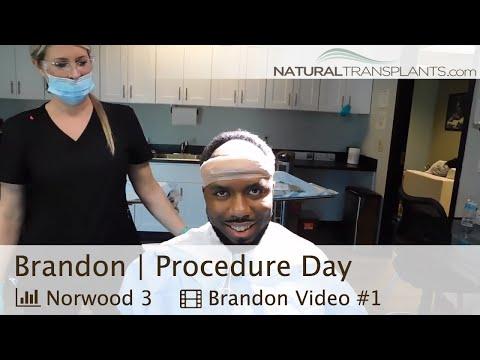 Black Man Hair Transplant Surgery | Black Hair Loss Treatment (Brandon)