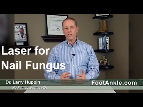Laser for Toenail Fungus: Does it really work? By Seattle Podiatrist Larry Huppin
