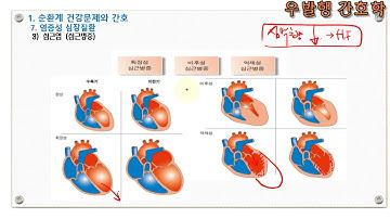 순환기계7  염증성 심질환 3  심근염. 우발행 간호사 성인간호학 교과서 해설강의