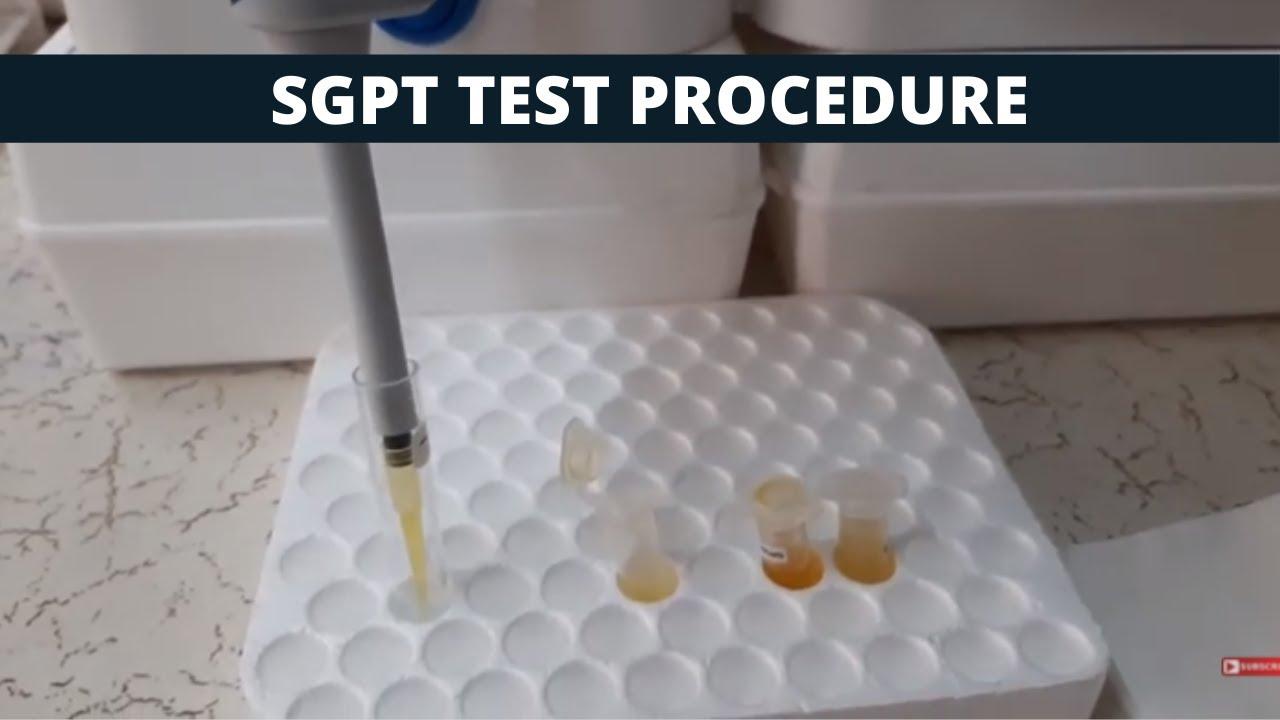 Sgpt Test Procedure Sgpt Simple Test Procedure Youtube