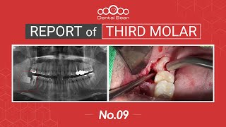 [ENG] Extraction of horizontal Rt. Mn third molar [#Dentalbean]
