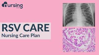 See more lessons and download free nursing school cheatsheets at nursing.com https://www.nursing.com/?utm_medium=email&utm_source=&utm_campaign=ebook&...