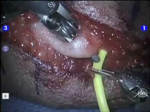 Nervo Ulnar Cirurgia Robótica para Anteriorização