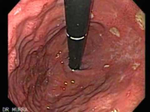 dolor linear unit solfa syllable boca del estomago por ulcera