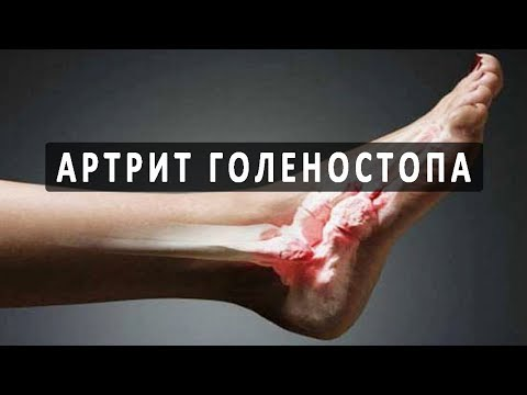 Изгиб стопы болит