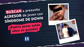 BUSCAN a presunto AGRESOR de joven con SÍNDROME DE DOWN, ¡Pasaría estos AÑOS en PRISIÓN!