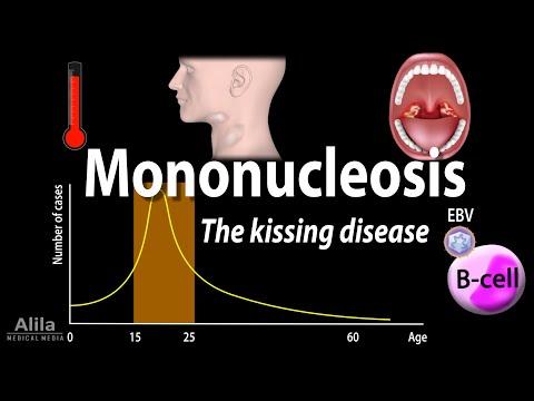 Infectious Mononucleosis (Mono) - the Kissing Disease, Animation