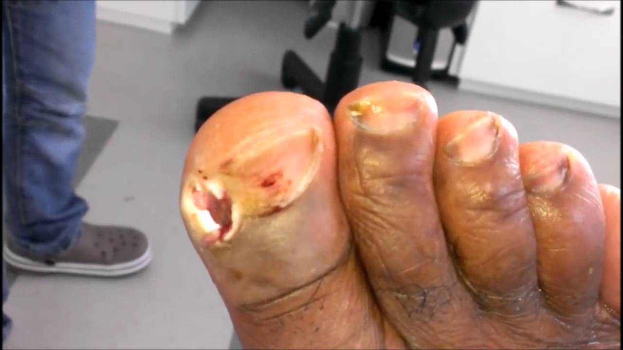 Day 8: Ingrown Toe-nail: Gaping Hole After Operation. - YouTube