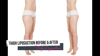 Get Natural and Beautiful Legline With The Help Of Thigh Liposuction Surgery