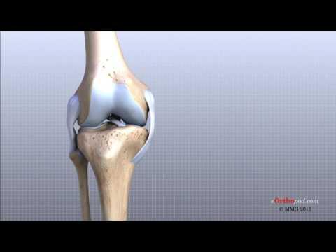 ruperea ligamentului cruciat al tratamentului articulației genunchiului