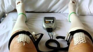 【入院】高位脛骨骨切り術 変形性膝関節症 術後4日目 骨折 超音波治療器 スポーツ選手など