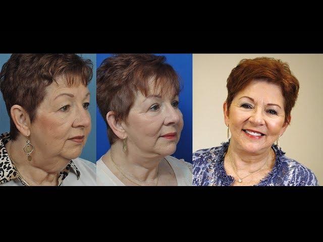Sandra's Transformation Story