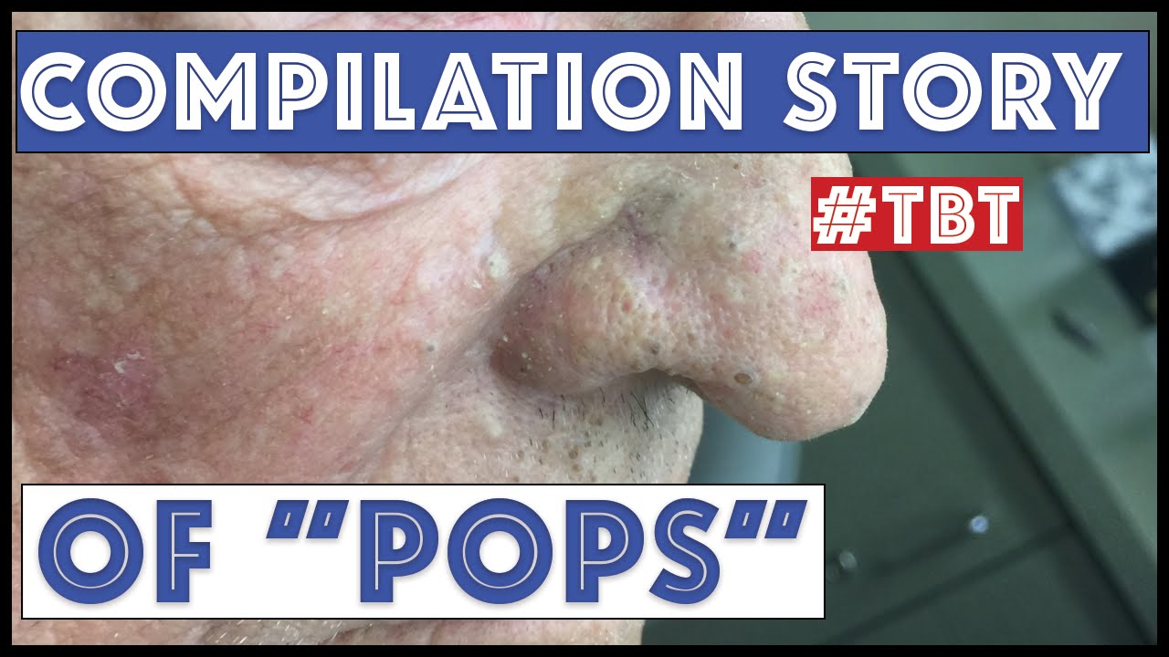"""Download """"Pops"""" and his BEST blackhead extractions - TBT"""