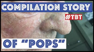 """""""Pops"""" and his BEST blackhead extractions - TBT"""