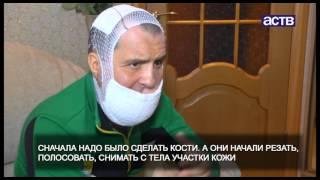 Сахалинцы собирают деньги на операцию мужчине, лицо которого изувечил фейерверк