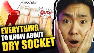 Tahun lepas ada video Dry Socket ni dari perspektif pesakit. Kali ni daripada doktor gigi pulak. htt.