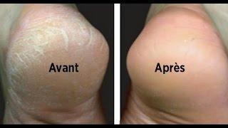 Traitement efficace contre les pieds secs et talons crevassés.