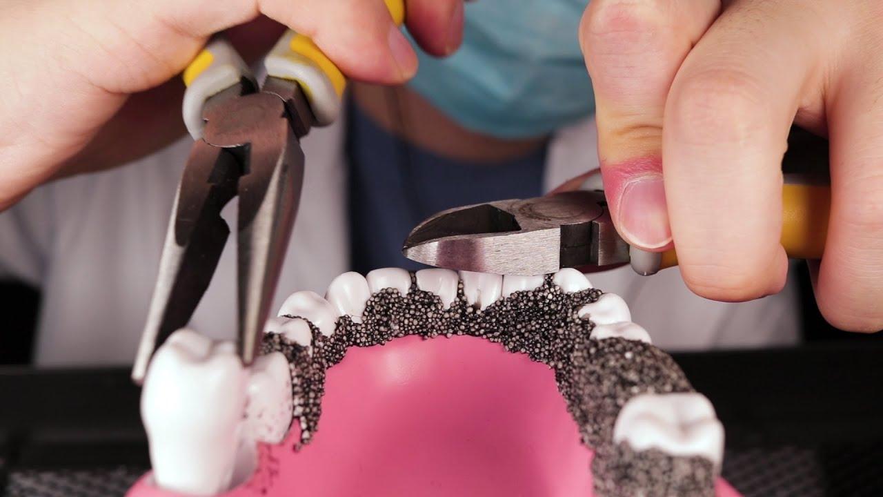 ASMR🦷 Dentist Pulls Your Bad Teeth!