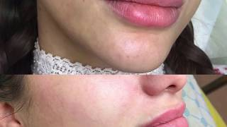 B. B. glow shiny face ефект тонального крему на рік