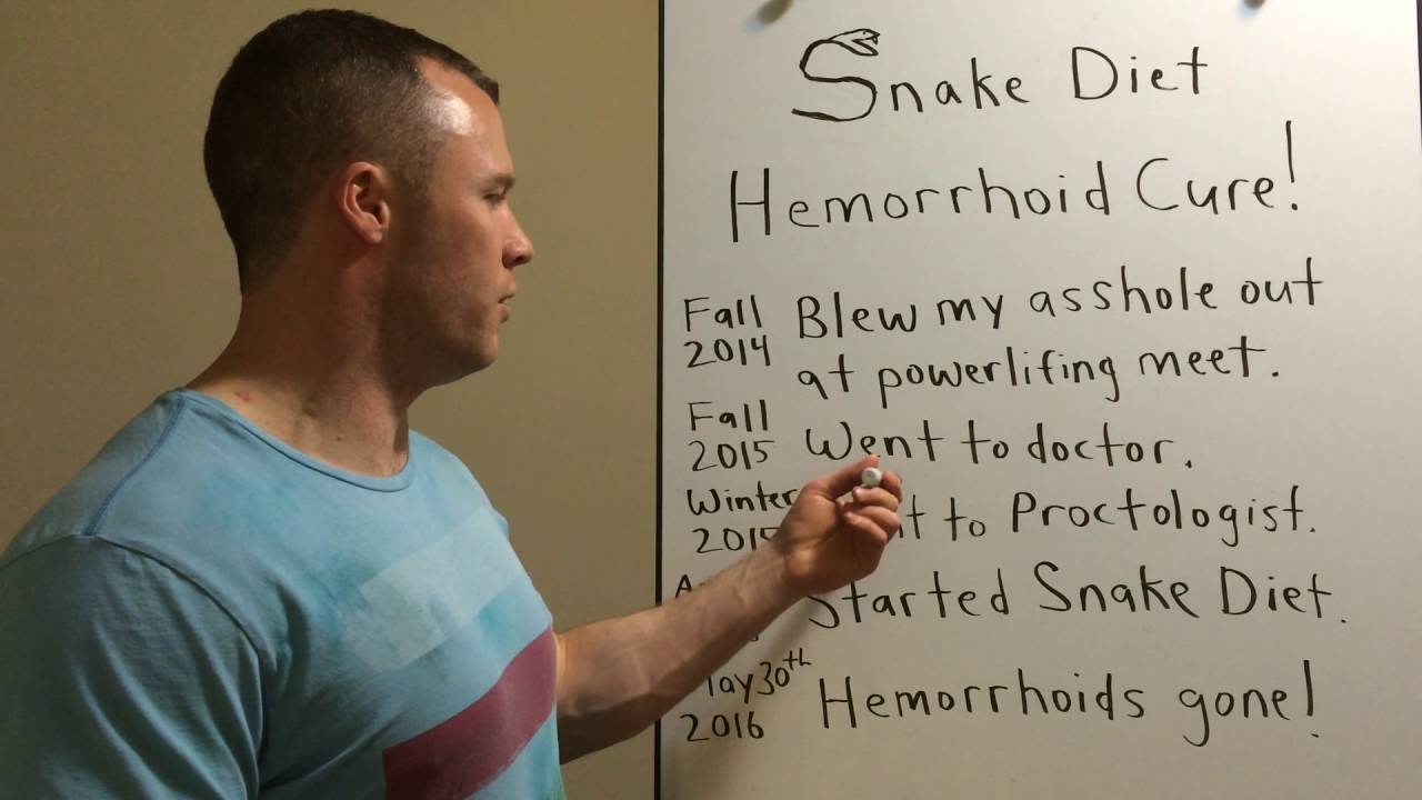 SNAKE DIET HEMORRHOID CURE! - YouTube