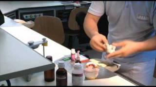 Protesi Toronto in resina con tecnica All on four