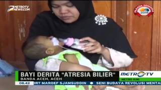 Bayi Ini Butuh Biaya Lebih dari Rp1 Miliar untuk Transplantasi Hati