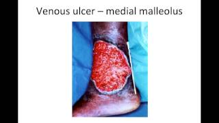 Venous Leg Ulcer -  Patient Assessment and Management