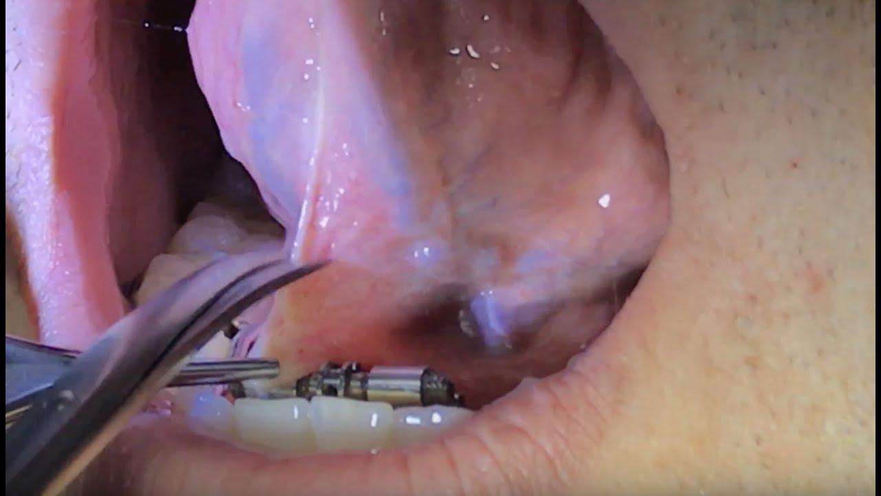 disfunzione erettile gplc