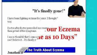 Eczema -eczema face cream - You must see it Thumbnail