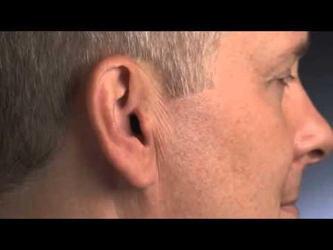 Обзор внутриушные и внутриканальных слуховых аппаратов сименс. Консультация или запись на примерку слухового аппарата ☎ (044) 494-33-21.