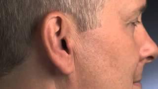 Смотреть видео внутриушные слуховые аппараты