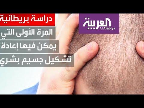 صباح العربية  أخيرا بشرى سارة لمن يعانون من الصلع  - نشر قبل 2 ساعة