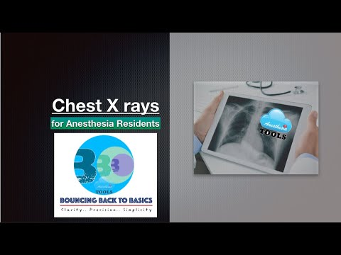 Chest X Rays - For Anesthesia Residents #AnesthesiaTOOLS #saneeshpj