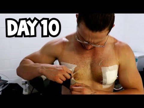 Gyno Surgery Recovery Day 10 - Heading to the hospital with 2 hematomas..