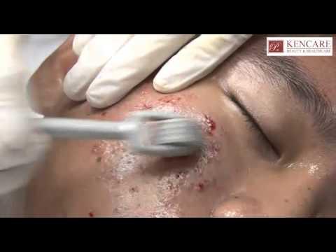 Demo Phương pháp lăn vi kim điều trị sẹo lõm tại KenCare Việt Nam