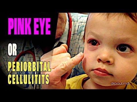 DIAGNOSIS: Pink Eye or Periorbital Cellulitis?  Dr Paul