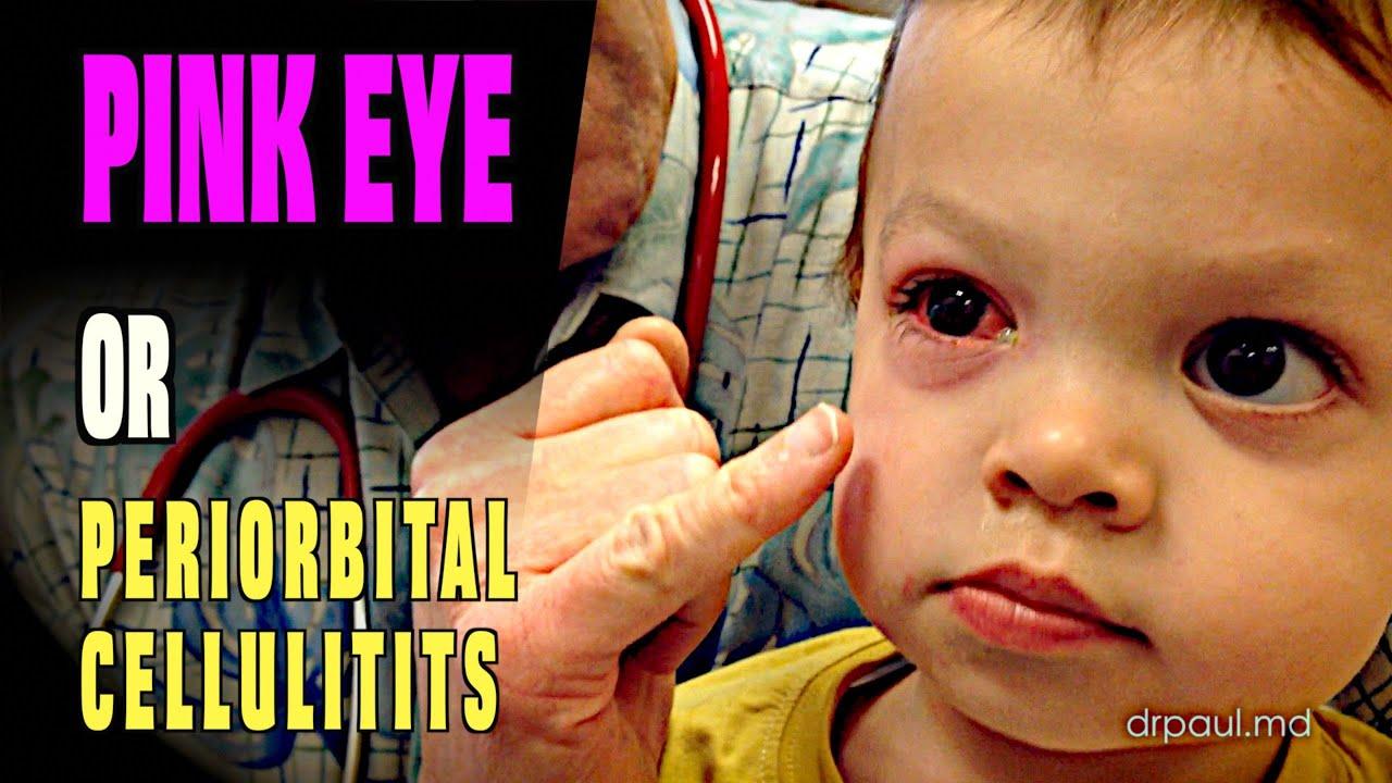 LIVE DIAGNOSIS: Pink Eye or Periorbital Cellulitis? | Dr ... - photo#22
