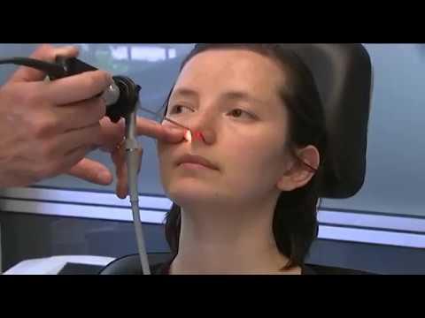 Burun tıkanıklığı için ameliyattan önce yapılması gerekenler - Star TV ana haber