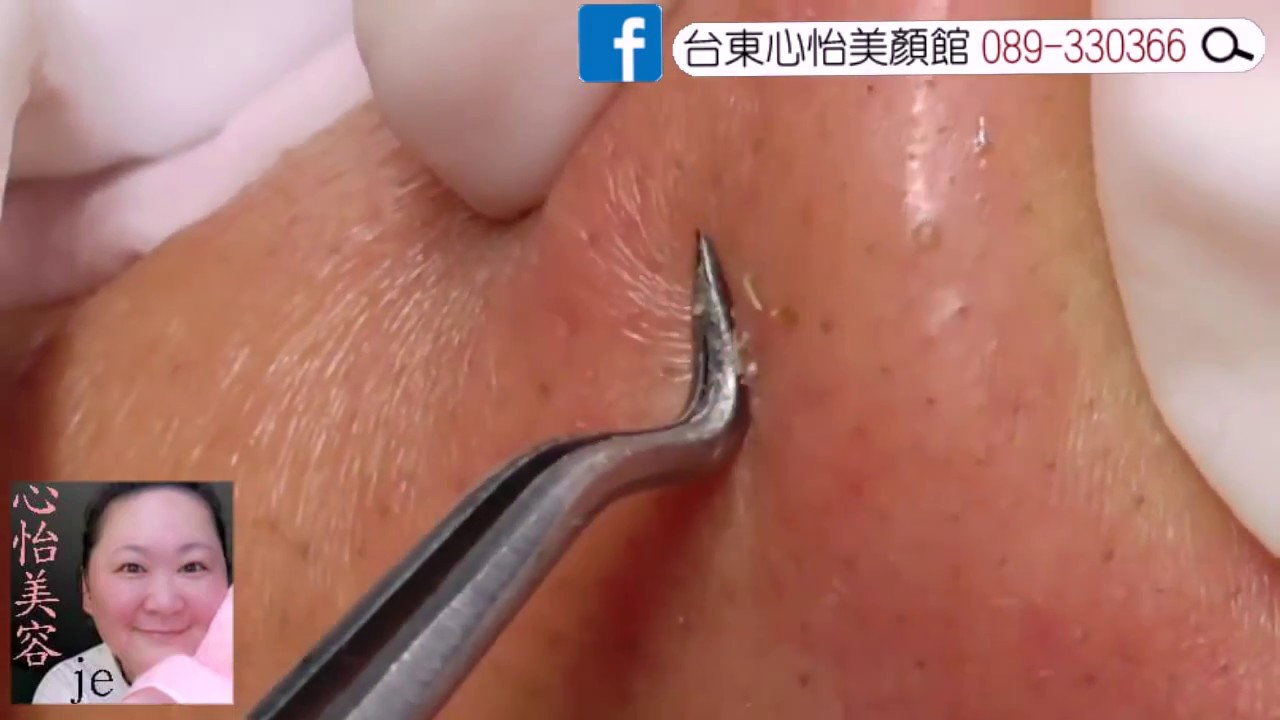 A Cyst Hiding Behind the Earlobe! With Dr  JE Pimple Popper