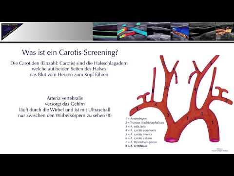 Carotis Sceenings Trainings-Zentrum