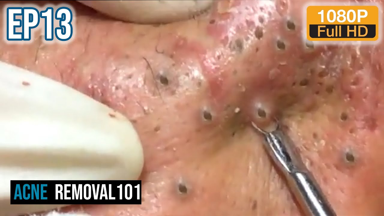 Removal acne videos severe ✨ What can