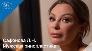 Мужчины, ринопластика, пластический хирург Сафонова