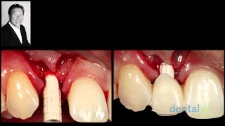 Two Immediate Temporization Methods Exemplified: Flap vs. Punch Technique...jCD 29-4 Thumbnail