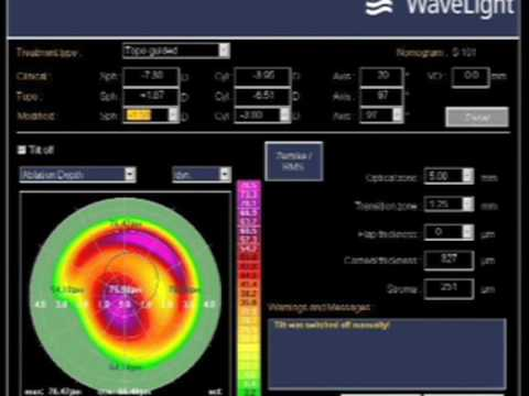femto and excimer assisted lamellar keratoplasty (DALK) for advanced keratoconus, Kanellopoulos, MD