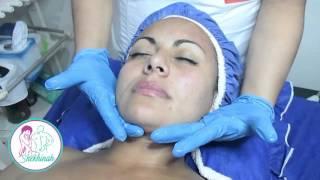 Cerca de tratamiento facial araña de mí venosa