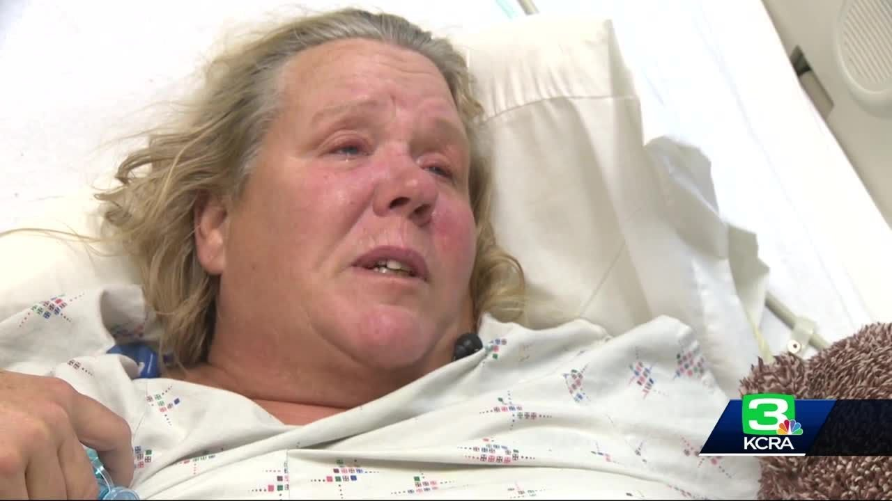 Caltrans Contract Worker Speaks Out After I-80 Crash Injury