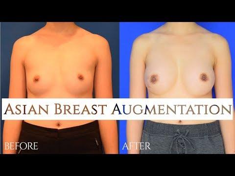 vancouver Breast enhancement